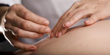 Acupuncture Hornchurch