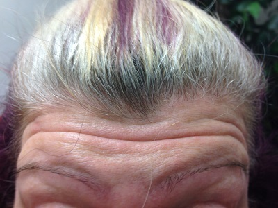 Before Botox injections - Forehead