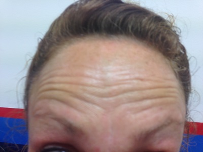 Before Botox - Forehead