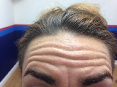 Before Botox injections