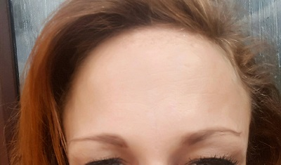 Frown After Botox