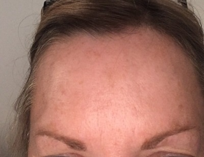 Frown After Botox Injections