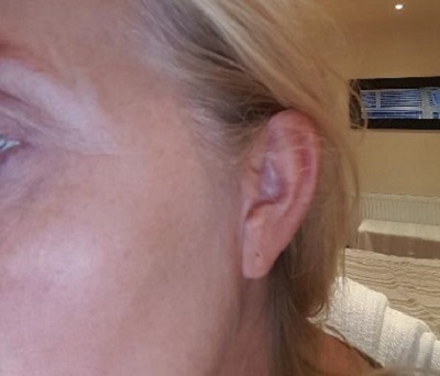 Left Crows feet After Botox Injections