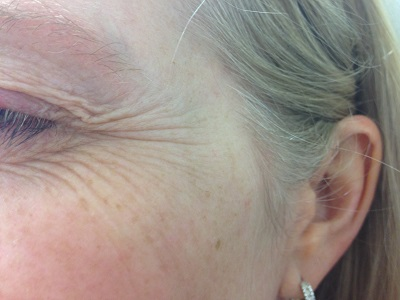 Left Crows Feet Before Botox Injections