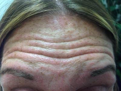 Forehead Before Botox Treatment