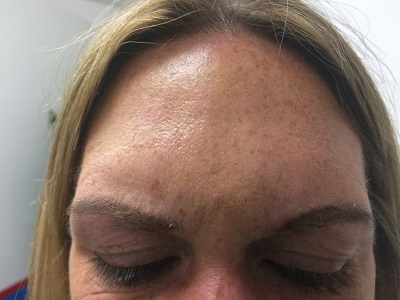 Frown After Botox Treatment