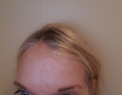 Forehead After Botox Injection