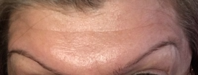 After Botox injections - Forehead