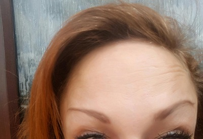 After Botox - Forehead