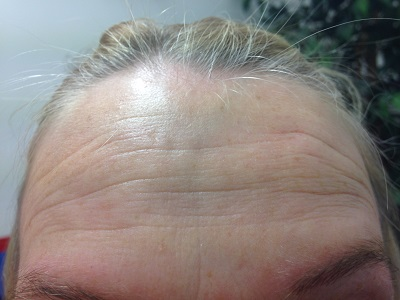 Forehead Before Botox Injection