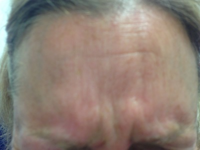 Frown Beforte Botox Injections