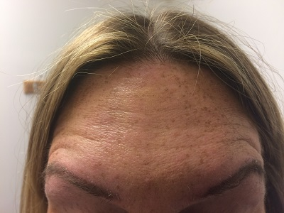 Forehead After Botox Treatment