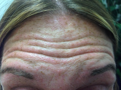Forehead Before Botox Treatment