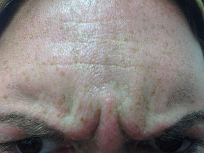 Frown Before Botox Treatment
