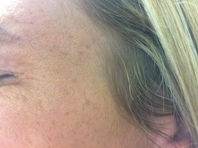 L Crow feet After Botox Treatment