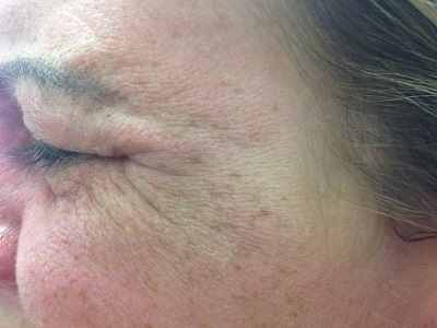 L Crows feet  Before Botox Treatment