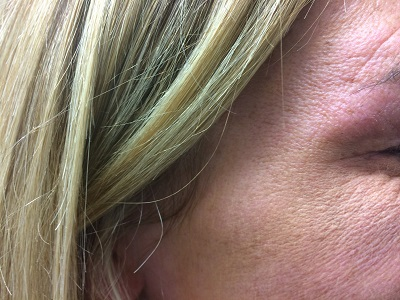 R Crows feet  After Botox Treatment
