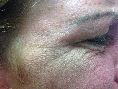 R Crows feet Before Botox Treatment