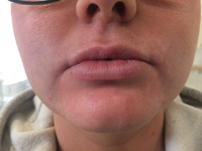 Before Dermal Filler