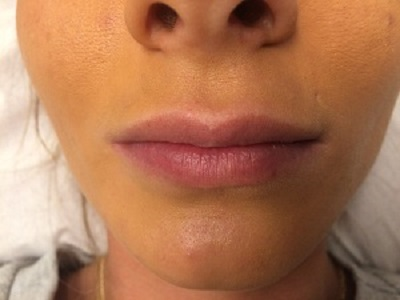 Female Before Dermal Fillers (lip Borders)